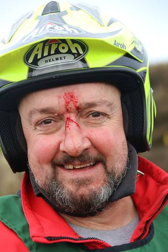 A bloodied but not out Peter Hallam at Manchester 17's Boxing Day Trial